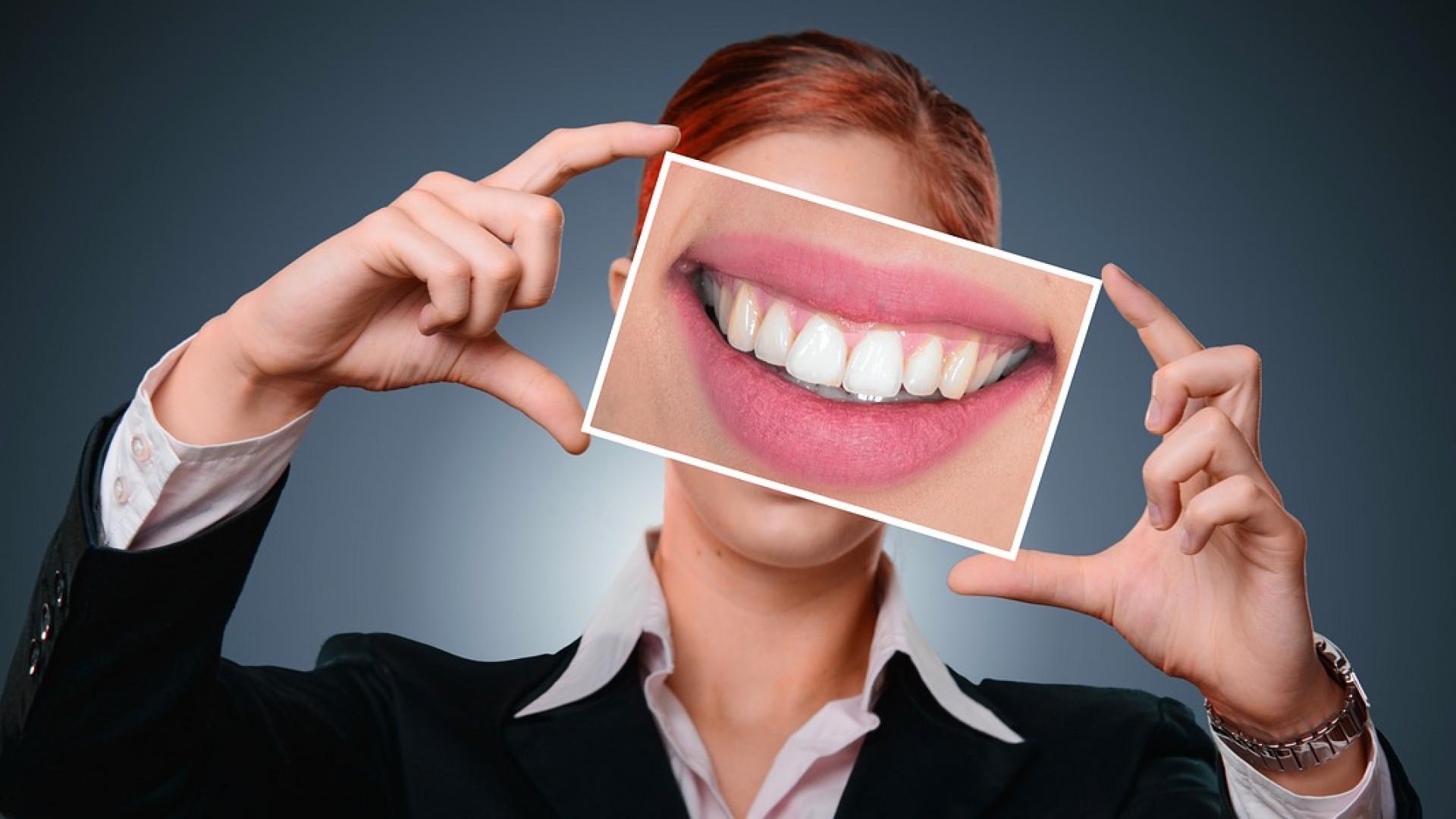 Blanchiment des dents : ce que vous devez savoir